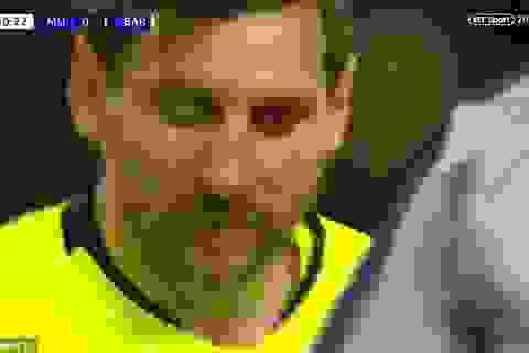 """Messi chảy máu đầm đìa sau khi dính """"đòn"""" của Smalling"""