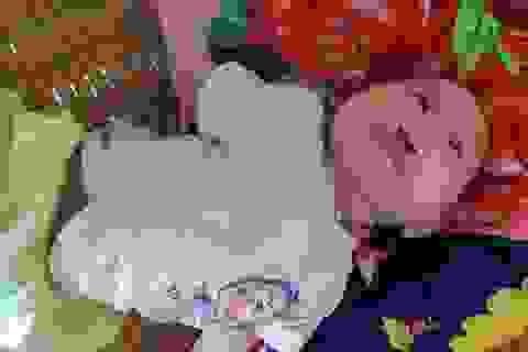 """Mong manh số phận bé 4 tháng tuổi bị tim bẩm sinh, hở hàm ếch đợi một """"phép màu""""!"""