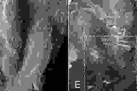 Tìm thấy dấu chân khủng long được bảo tồn hoàn hảo cực hiếm