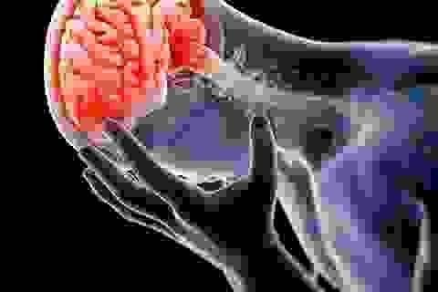 Phương pháp phục hồi chức năng não bộ giúp đẩy lùi di chứng não