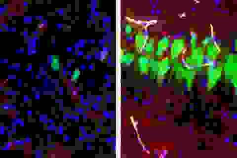 Các nhà khoa học khôi phục thành công một phần chức năng não lợn đã chết