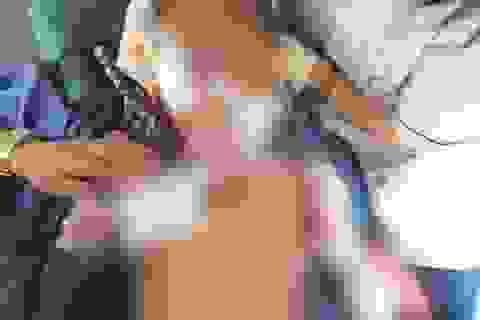 Bé 4 tuổi nhập viện trong đau đớn vì chó nhà lao vào tấn công