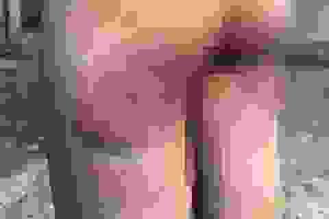 Vụ bé gái bị cô giáo đánh bầm mông: Xem xét kỷ luật khiển trách giáo viên vi phạm
