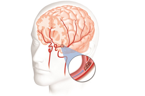 Phòng ngừa tai biến mạch máu não tái phát như thế nào?