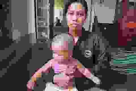 """Xót xa cảnh bé trai 10 tháng tuổi đau đớn chống chọi với bệnh """"não úng thuỷ"""""""