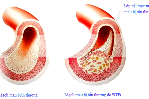 Tại sao người bị tăng huyết áp thường mắc cả đái tháo đường?