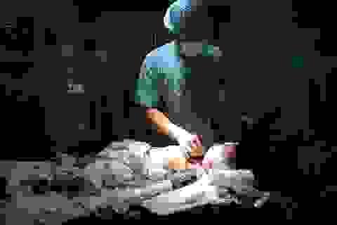 Các bác sĩ Bệnh viện Trung ương Huế mổ tim miễn phí cho bệnh nhân ở Hà Tĩnh