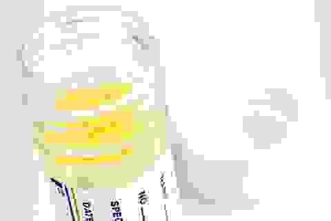 Xét nghiệm nước tiểu có thể giúp phát hiện ung thư tuyến tiền liệt sớm
