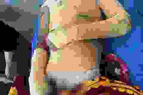 Cậu bé 15 tuổi đi làm thuê bị điện giật bỏng 70% cơ thể