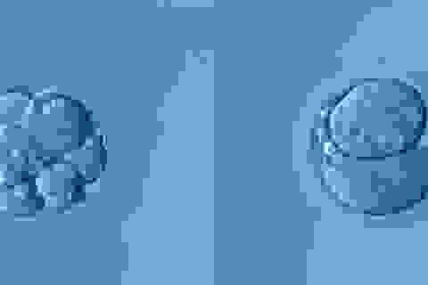 5 cặp vợ chồng người Nga đã đồng ý sử dụng chỉnh sửa gene để con không bị điếc?