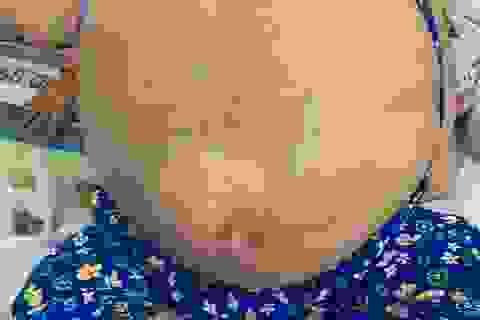 Nữ bệnh nhân 19 tuổi mang khối bướu khổng lồ như ễnh ương
