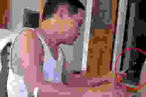 """""""Choáng"""" với cách kiểm tra bệnh dại của thầy lang ở Hà Tĩnh"""