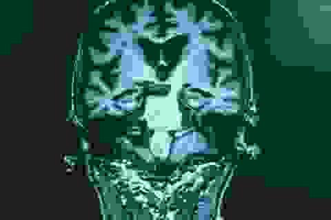 Xét nghiệm máu phát hiện bệnh Alzheimer ở giai đoạn đầu với độ chính xác 94%