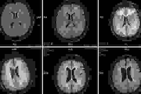 Cocaine có tác động khủng khiếp trên não như thế nào?