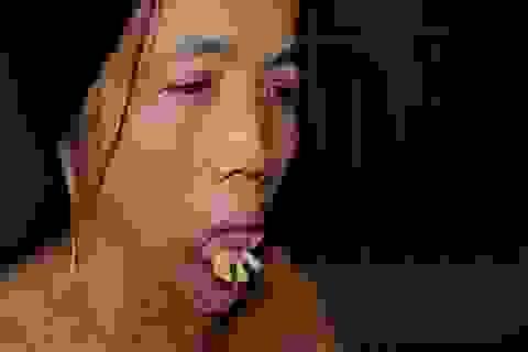 """Viện Bỏng Quốc gia chữa miễn phí cho người đàn bà nửa thế kỉ mang hàm răng """"kì dị"""""""