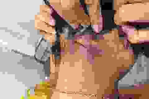Kiến ba khoang tràn vào bệnh viện tấn công bệnh nhân