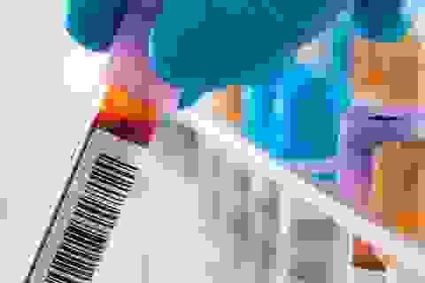 5 câu nên hỏi về kết quả xét nghiệm máu