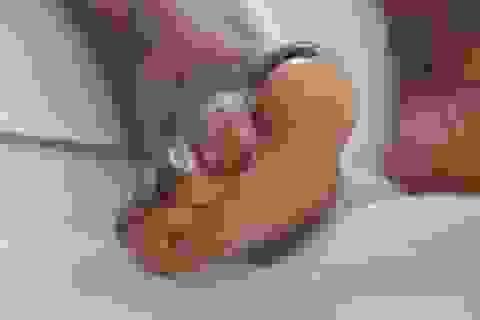 Cảnh báo: Whitmore - Bệnh truyền nhiễm đang bị bỏ quên tại Việt Nam