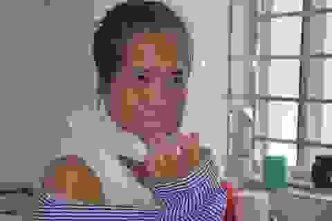 """Người đàn bà mang hàm răng """"kỳ dị"""" đã có """"khuôn mặt mới"""" sau ca phẫu thuật"""