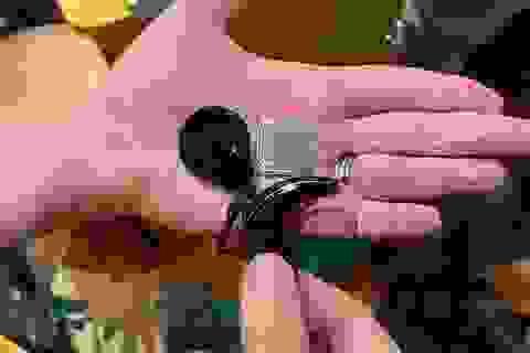 Ốc tai điện tử đặc biệt giúp lấy lại thính lực cho người bị điếc