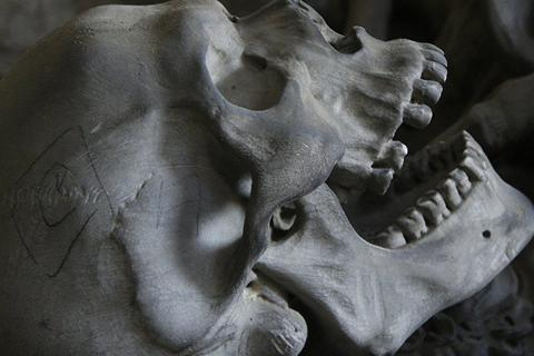 Phát hiện vật chất lạ trong răng bộ xương thời Trung Cổ