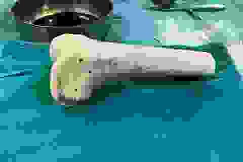 """Ghép xương từ người cho chết não cứu nhiều người u xương tế bào khổng lồ """"ăn"""" xương đùi"""