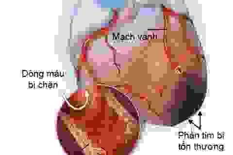 Nguy cơ nhồi máu cơ tim do chủ quan với máu nhiễm mỡ