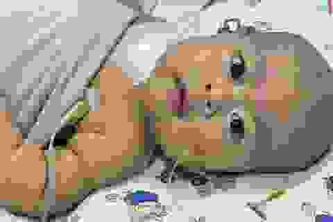 Cậu bé kháu khỉnh mới 7 tháng tuổi đã phải chống chọi với tử thần