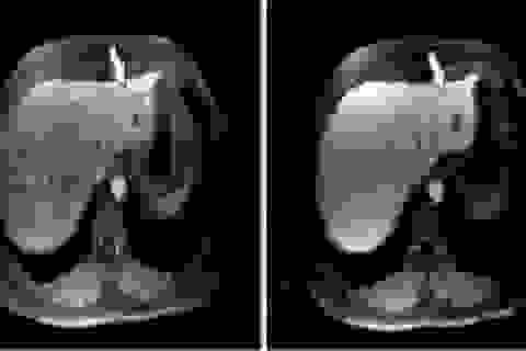 Phát hiện sớm ung thư gan bằng cách nào?