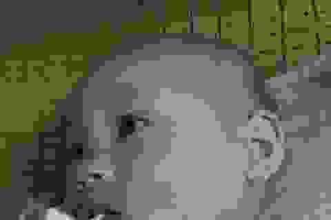 Vụ bé gái 14 tháng tuổi bị nhiều vết thương trên mặt: Công an kết luận do bạn cùng lớp cắn