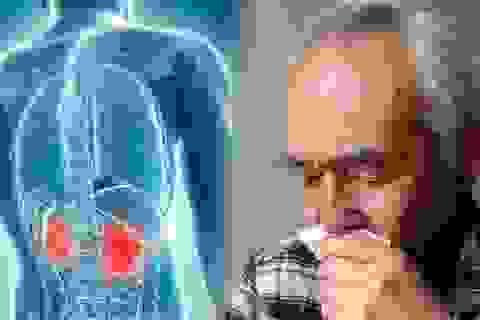 Bác sĩ khuyến cáo 5 điều cần làm để tránh xa căn bệnh ung thư thận