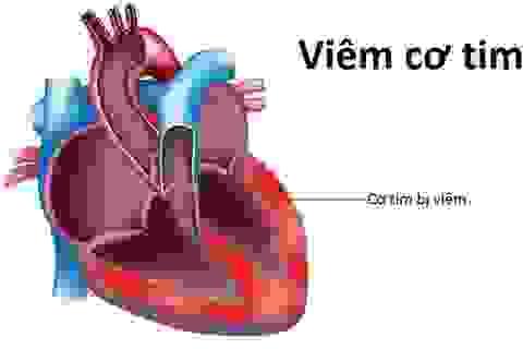 Hai bệnh nhân tử vong do viêm cơ tim đều tự điều trị hạ sốt trước khi tới viện