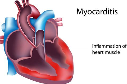 Hiểu đúng về căn bệnh viêm cơ tim khiến hai người Hà Nội tử vong