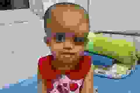Nhìn bé gái bị ung thư hành hạ hỏng một mắt mà lòng tôi như quặn lại!