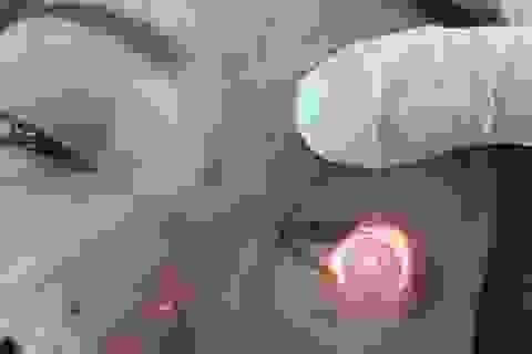 """Hoại tử, mù mắt khi tiêm filler: Đừng đặt cược tính mạng vào tay các chuyên gia """"tự phong"""""""