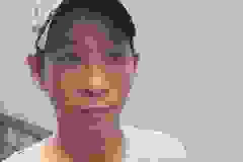 Lời khai của cha dượng châm tàn thuốc vào bé gái 6 tuổi
