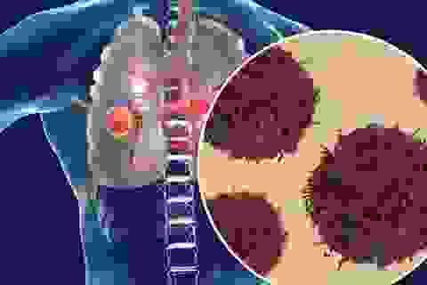 Ung thư phổi di căn, người đàn ông vẫn sống sót sau 6 năm