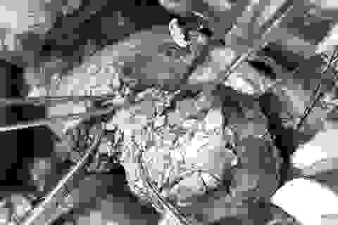 Đau bụng âm ỉ, coi chừng khối u hiểm ở tuyến tụy