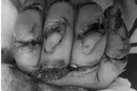 Bệnh nhi 23 tháng tuổi suýt mất 5 ngón tay vì máy rửa xe