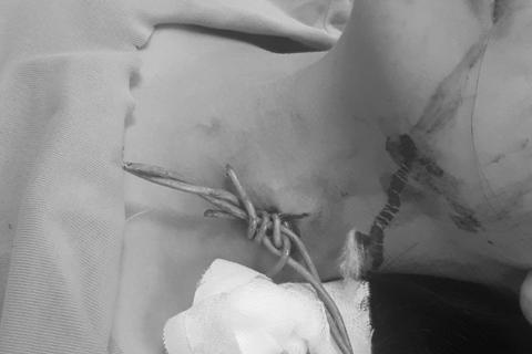 Đi xe đạp điện bị ngã, thiếu nữ 16 tuổi bị đoạn dây thép gai cắm vào cổ