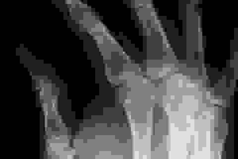 Bí ẩn xương ngón tay tìm thấy trong đôi tất của cửa hàng quần áo