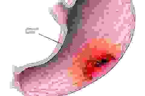 Bạn nên nghĩ đến ung thư dạ dày khi có những dấu hiệu này