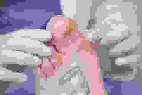 Tháo ngón chân bên cạnh vì ngón chân cái phát triển quá mức