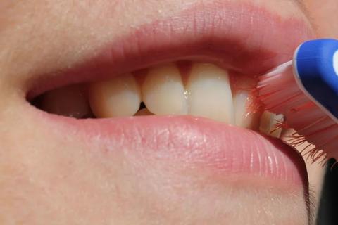 Kỳ lạ người phụ nữ mọc lông từ chân răng