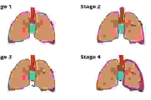 Các giai đoạn của ung thư phổi