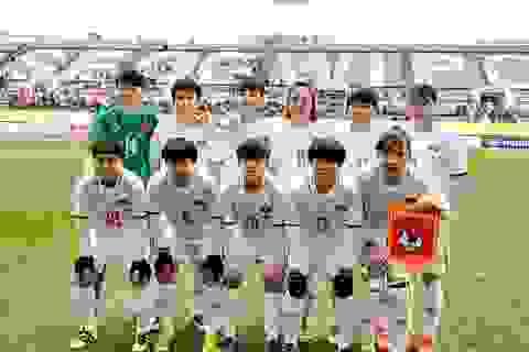 Cầu thủ nữ Việt Nam không chấn thương nặng ở trận gặp Hàn Quốc