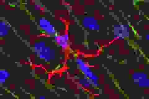 Tế bào miễn dịch phổ biến trong não có thể đóng vai trò chính trong bộ nhớ