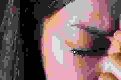 Vỏ não thị giác liên quan đến chứng đau nửa đầu