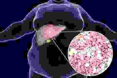 Tìm được cách chẩn đoán sớm ung thư gan và xơ gan