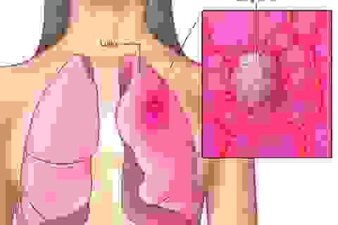 Bệnh nhân ung thư phổi sống được bao lâu?